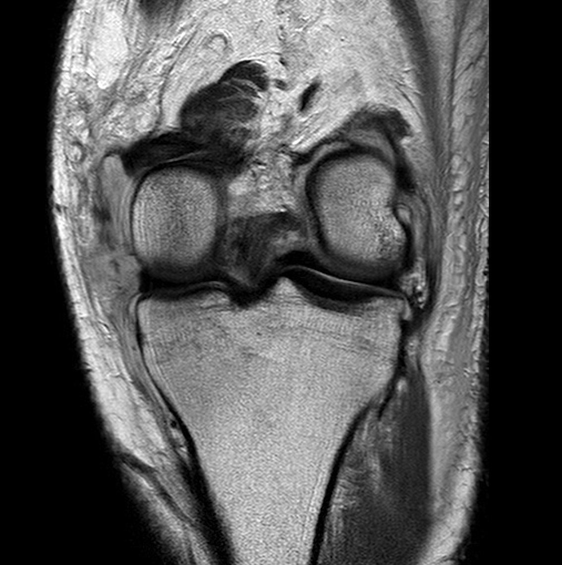 Knee Dislocation ACL PCL MCL MRI 1