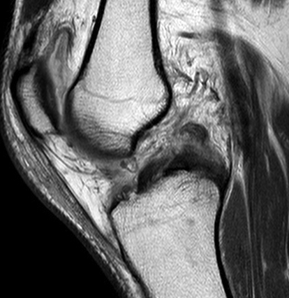 Knee Dislocation ACL PCL MCL MRI 3