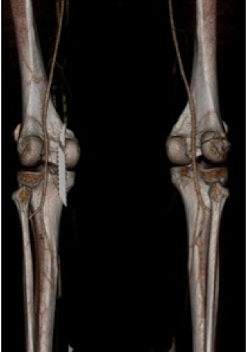 Knee Dislocation Normal CTa