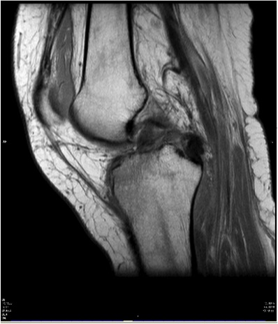 Knee Dislocation MRI ACL PCL torn