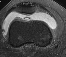 Loose Body Knee MRI PFJ