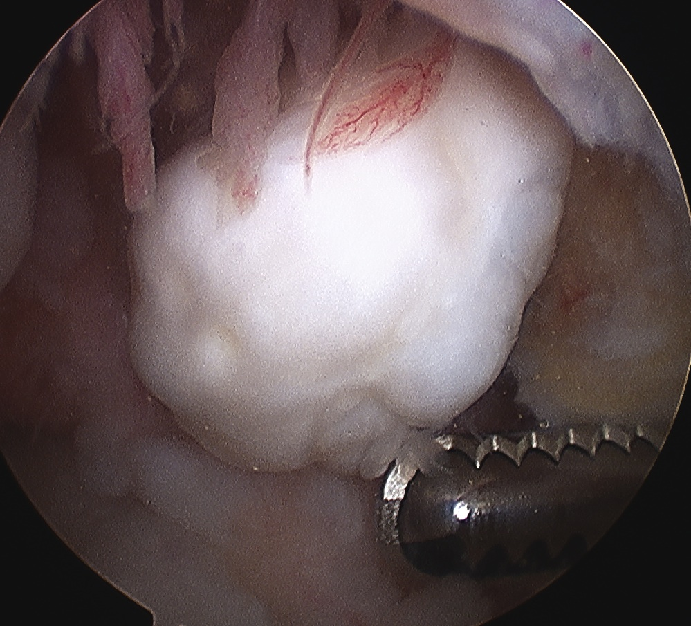 Knee Loose Body Arthroscopy