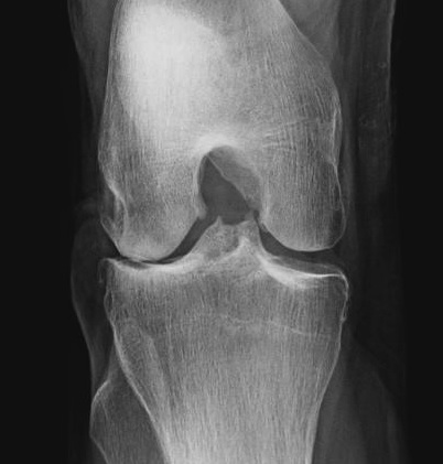 Knee OA Rosen View