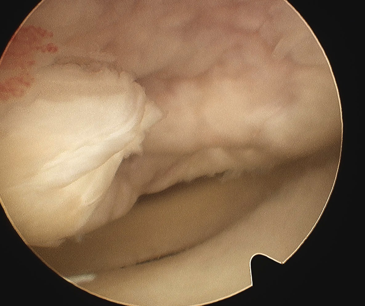 Knee OCD Arthroscopy Type 4