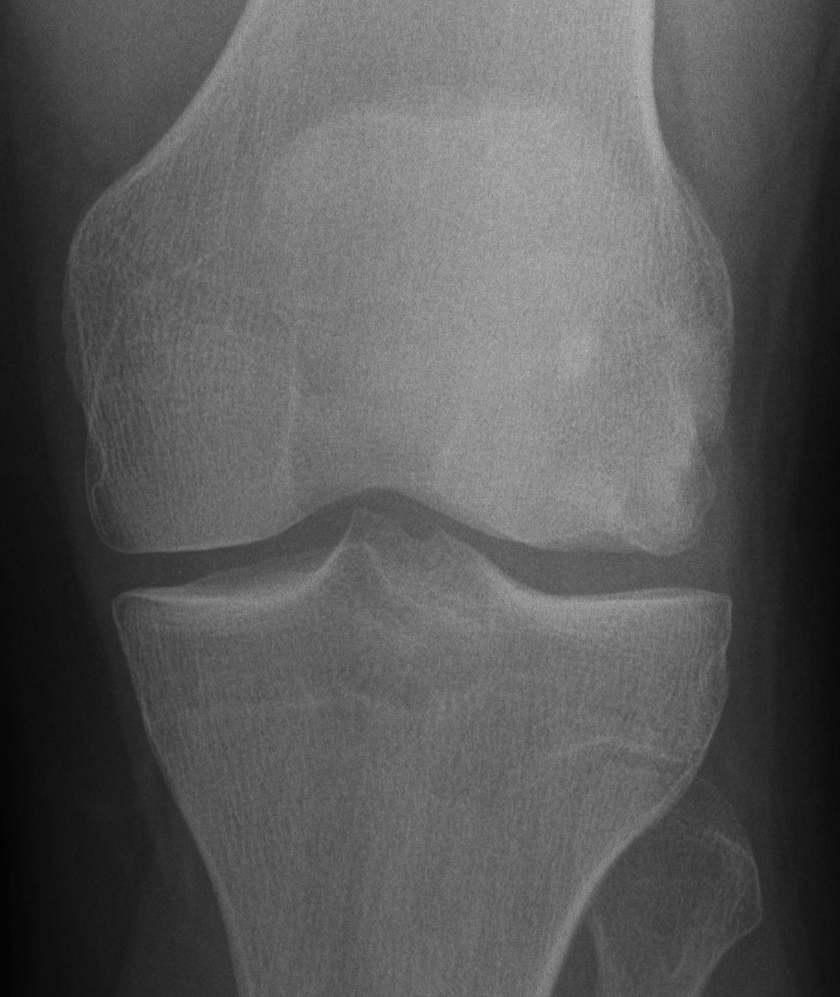 Knee OCD Lateral Femur AP