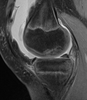Knee OCD MRI Partially Detached