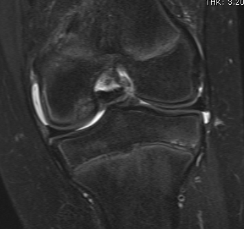 Knee OCD MRI Cartilage Intact T2