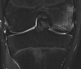 Knee OCD Case MRI 1