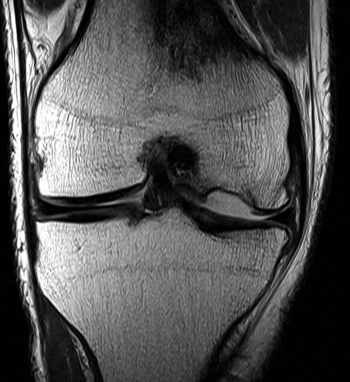 Knee OCD MRI Displaced and Empty Crater
