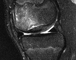 Knee OCD Case MRI 2
