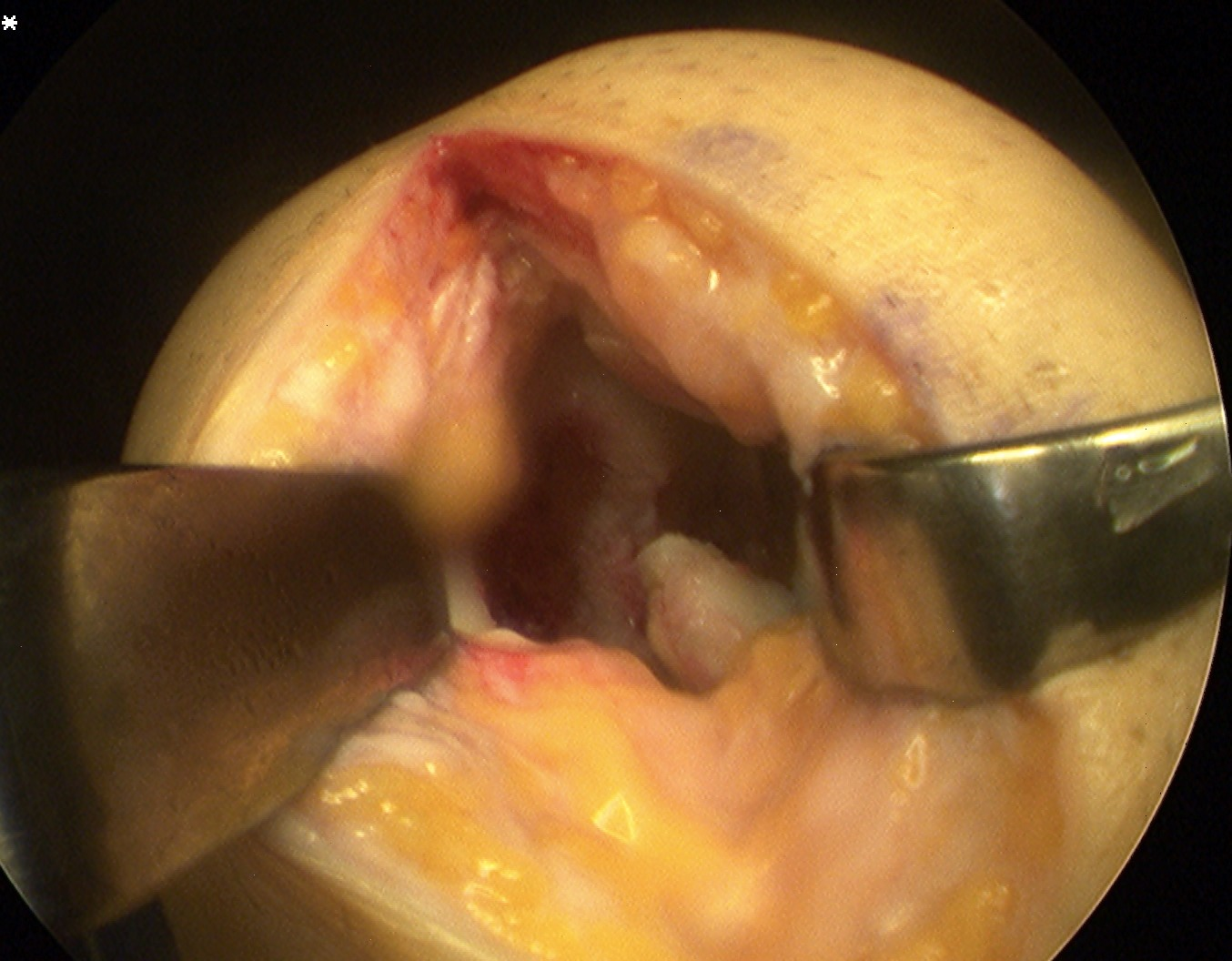 Knee OCD Medial Parapatella Approach