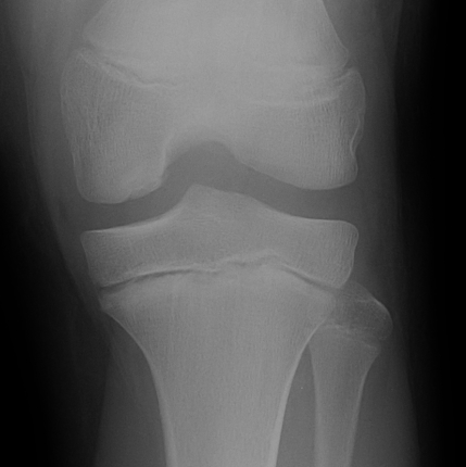 Knee OCD Xray Type 3