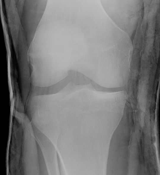 Knee PLC Xray Lateral Widening