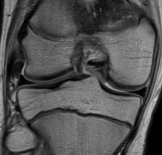 LCL MRI Normal Superior Aspect