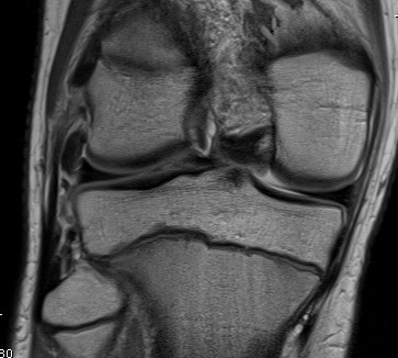 LCL MRI Normal Inferior Part