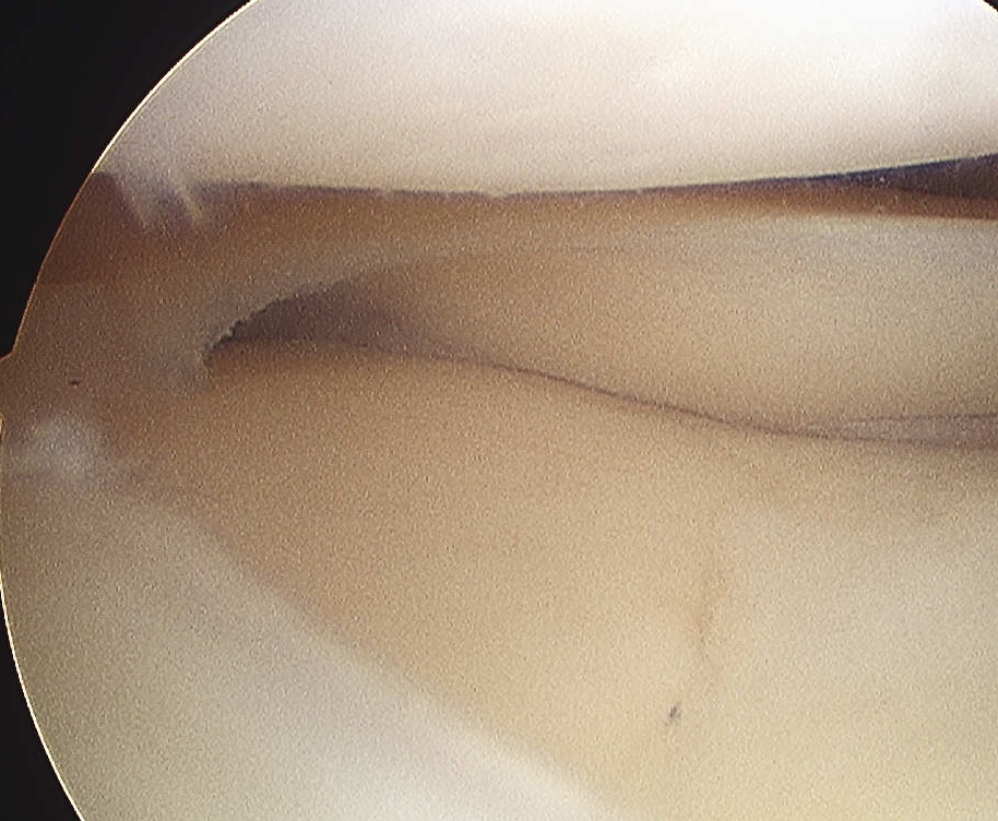 Lateral Meniscus Cyst Normal Looking Meniscus