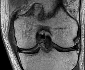MCL Chronic Femoral Thickening