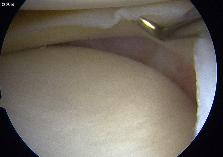 Arthroscopic Lift off of medial meniscus in MCL injury