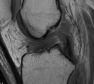 MRI ACL torn and healed on PCL