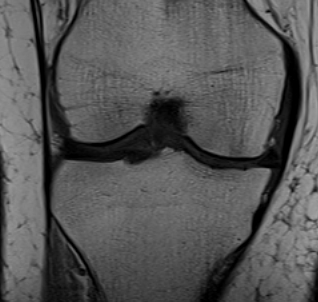 MCL Chronic Femoral Thickening on MRI