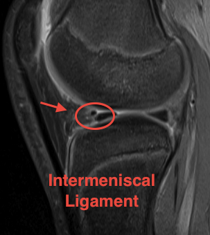MRI Intermeniscal Ligament