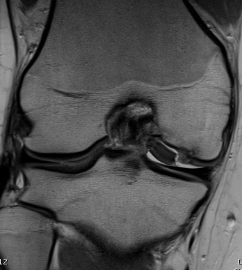 MRI Knee Displaced OCD