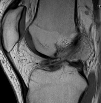 MRI Knee Loose Body In Notch