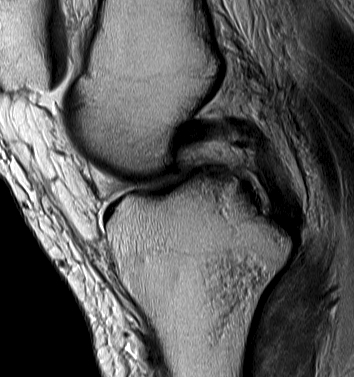 PCL Midsubstance tear with stretching