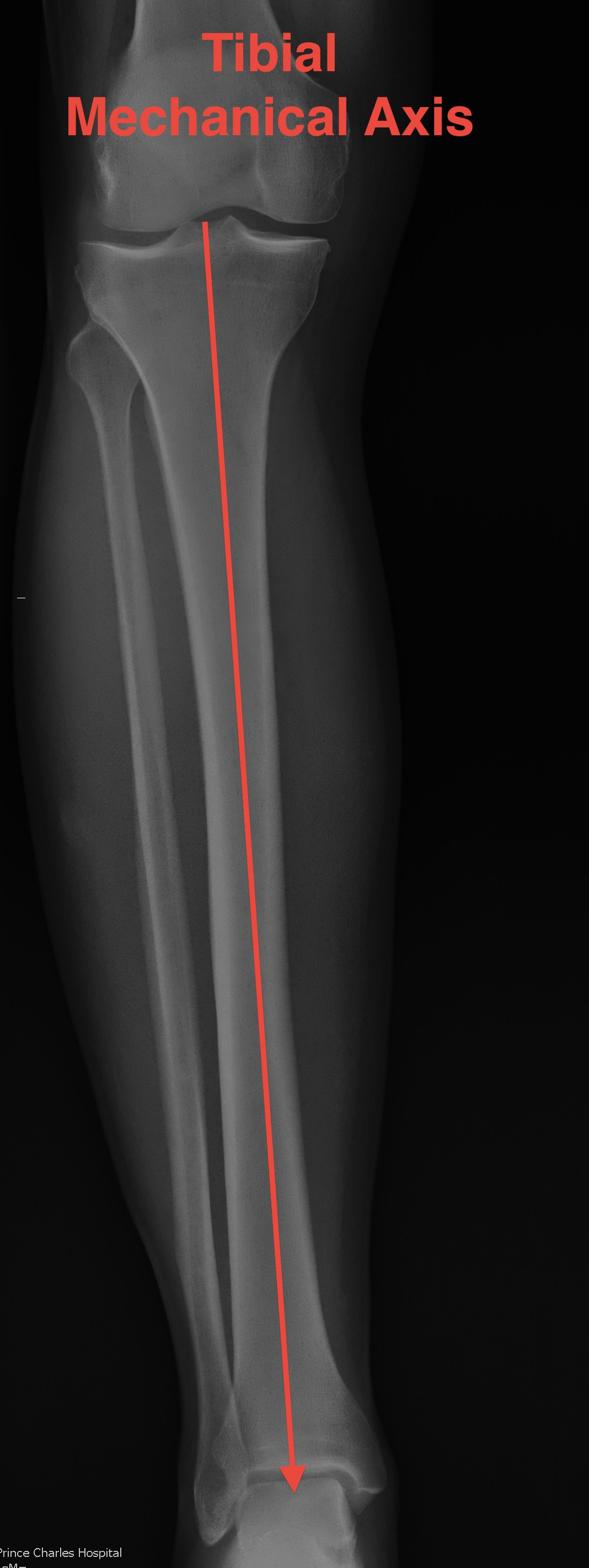 Mechanical Axis Tibia