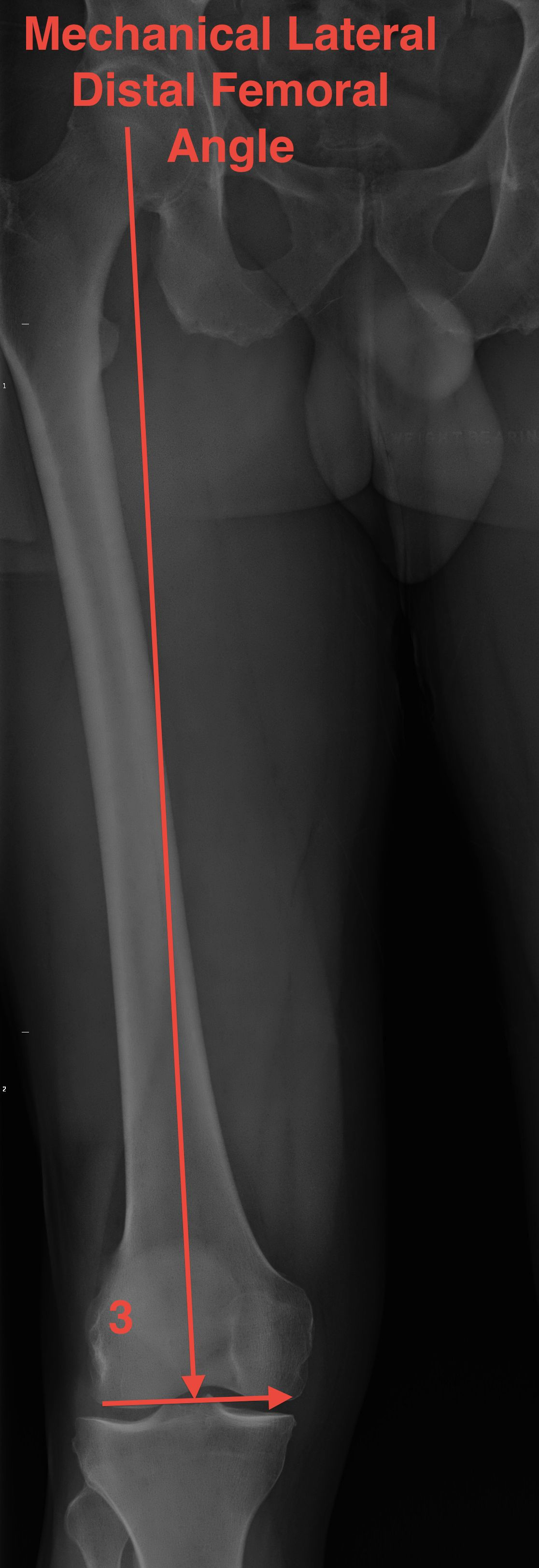 Mechanical Lateral Distal Femoral Angle