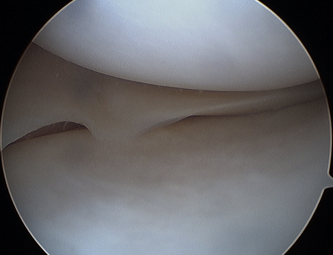 Medial Meniscus Normal