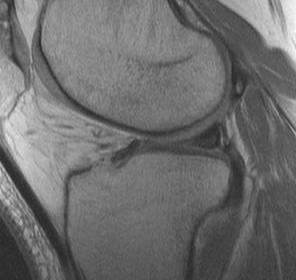 Meniscus MRI Increased Signal