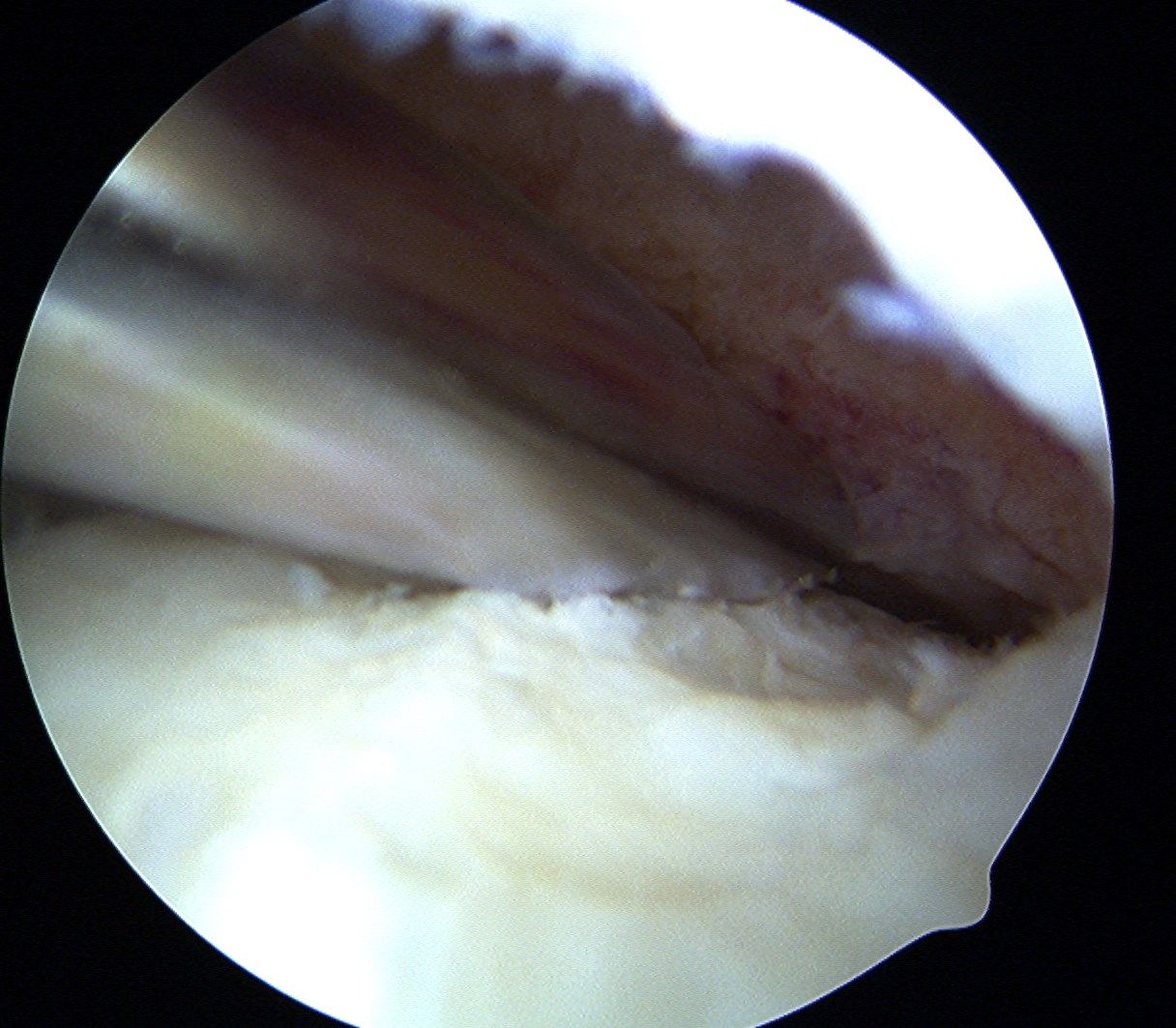 Femoral OCD Base Debridement