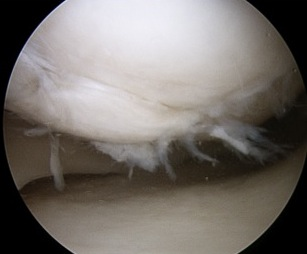 OCD Type 3 Arthroscopy