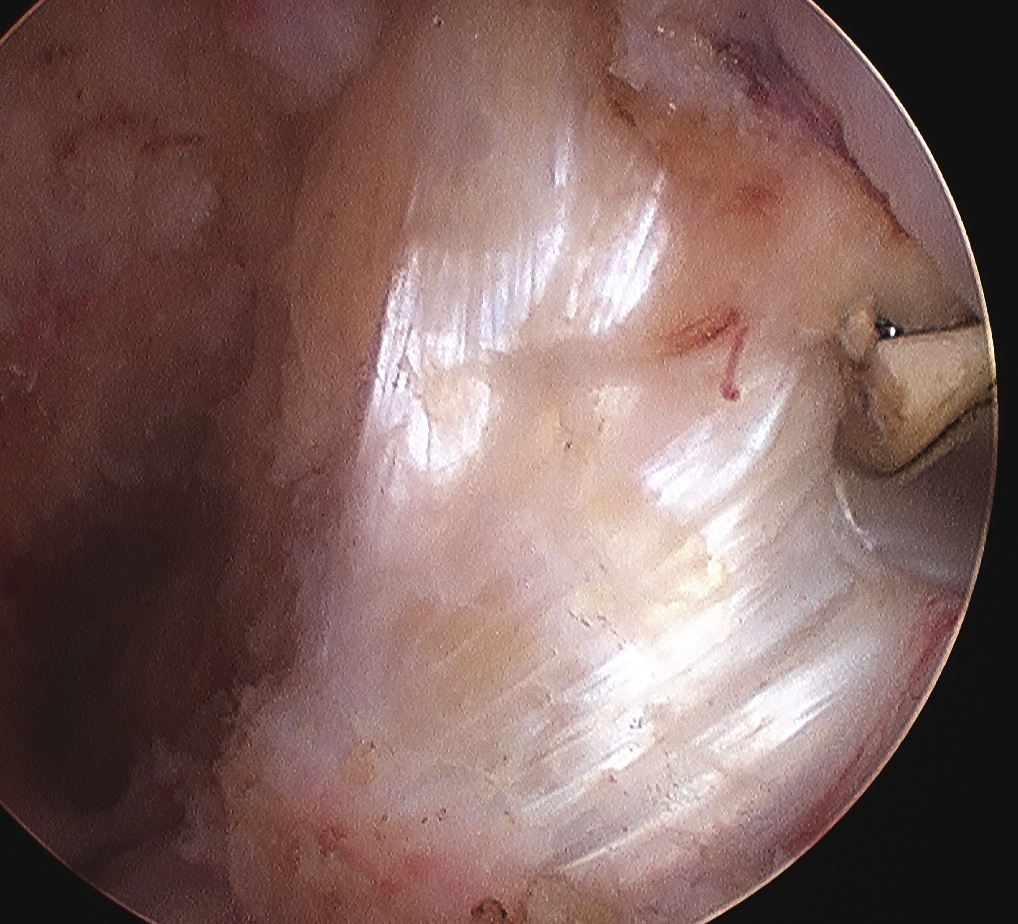 PCL Arthroscopy