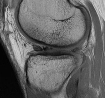 PCL Posterior Subluxed Tibia