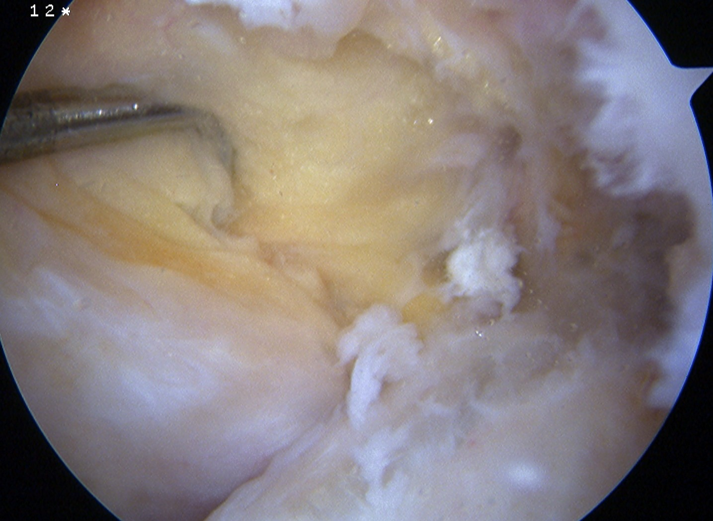 PCL Torn Arthroscopy 2