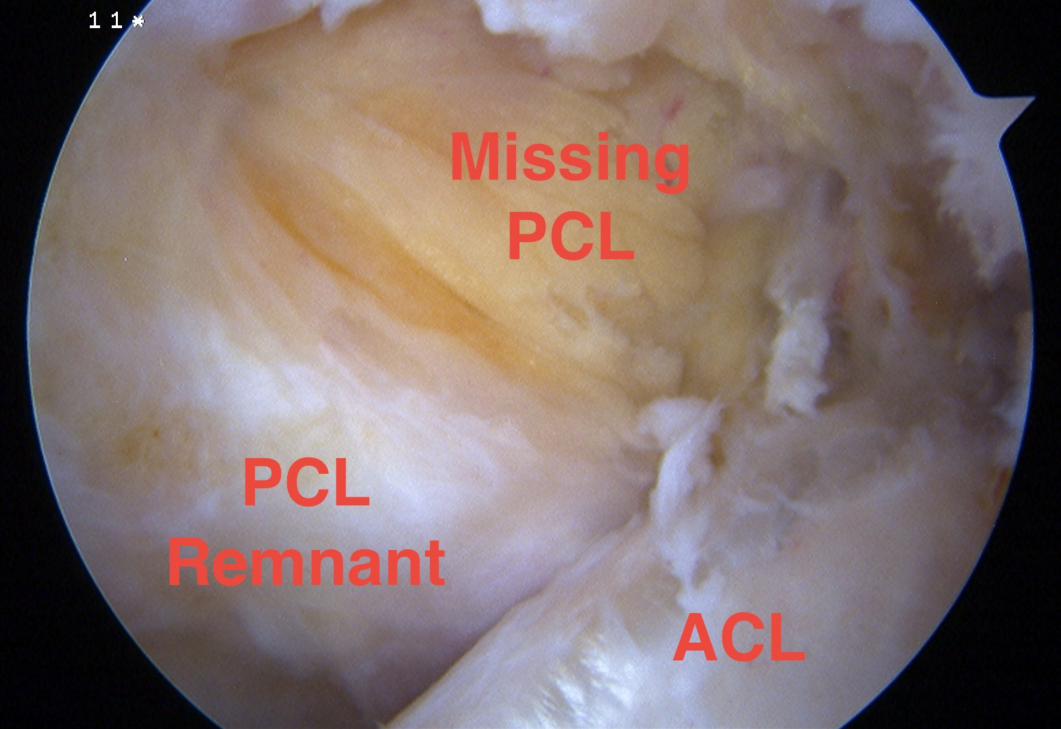 PCL Tear Arthroscopy