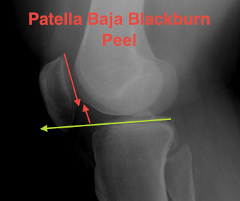 Patella Baja Blackburne Peele