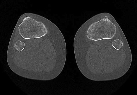 CT Axial Tibial Tuberosity