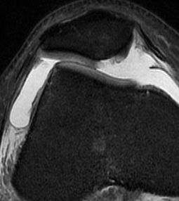 Patella Dislocation Chondral Damage Medial Facet Patella
