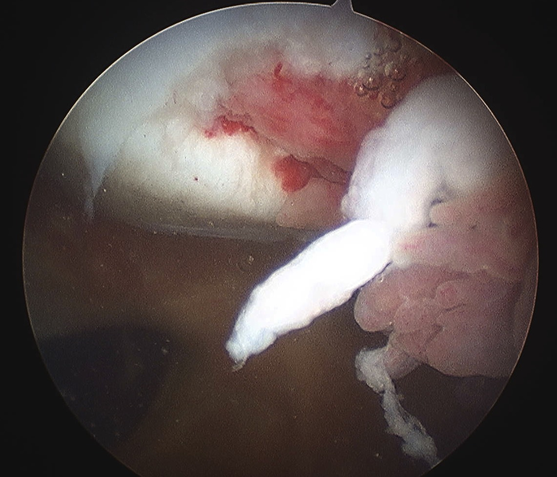 Patella Dislocation Unsalvageable Chondral Lesion