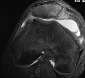 Patella DIslocation MRI OCD LFC MPFL Patella Chondral Damage