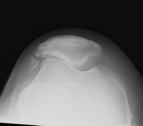 Patella Excessive Lateral Tension