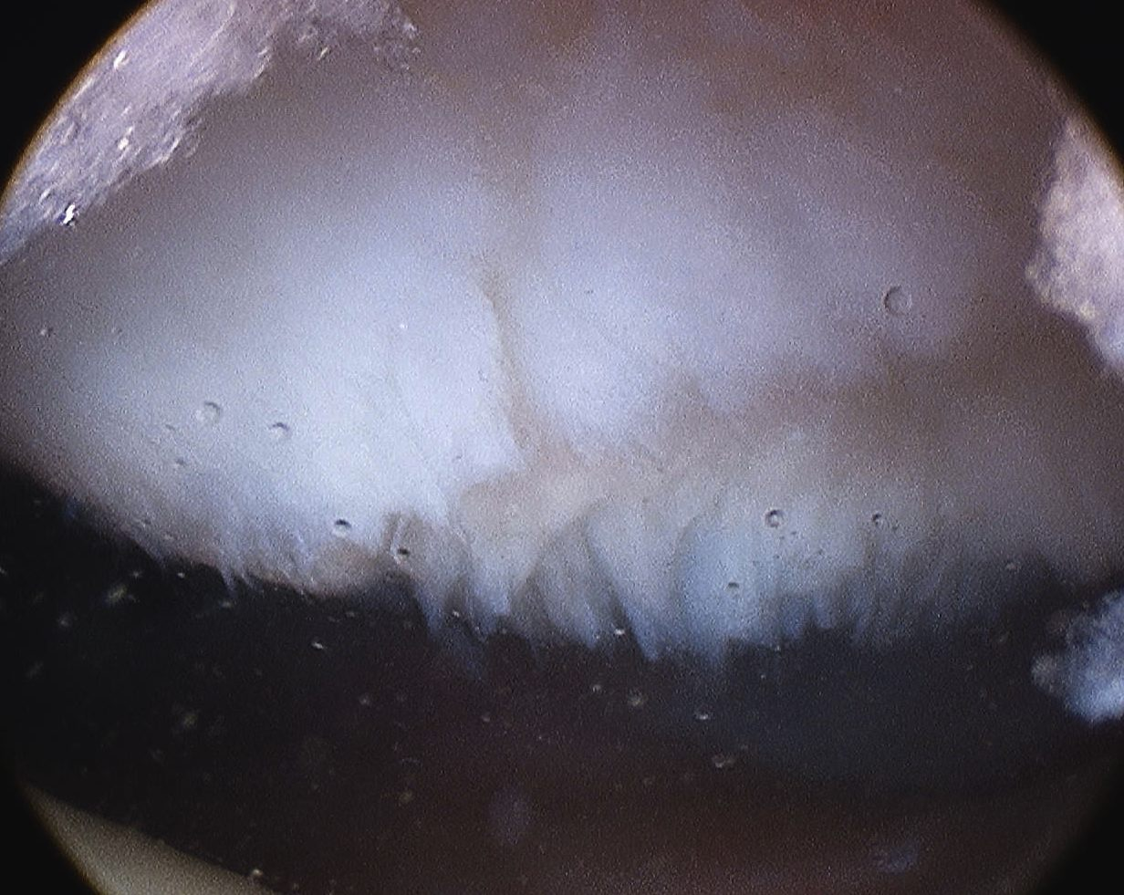 Patella Grade 3 Arthroscopy