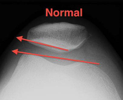 Patella Laurin View Normal