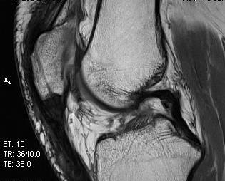 Patella Tendon Rupture MRI Post Repair