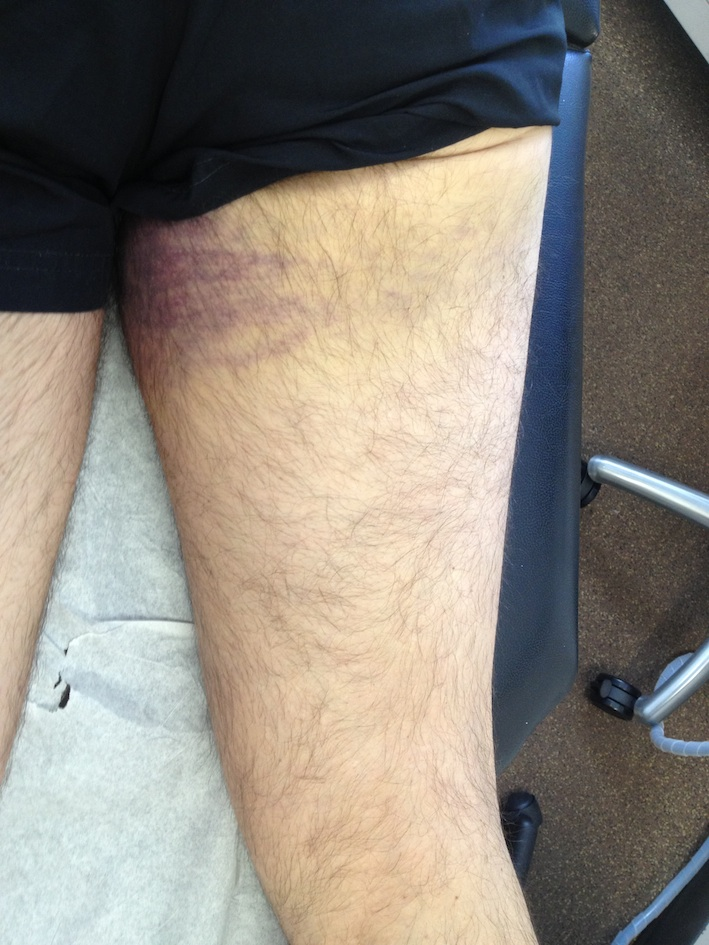 Proximal Hamstring Rupture Bruise