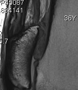 Quadriceps Tendinosis 2