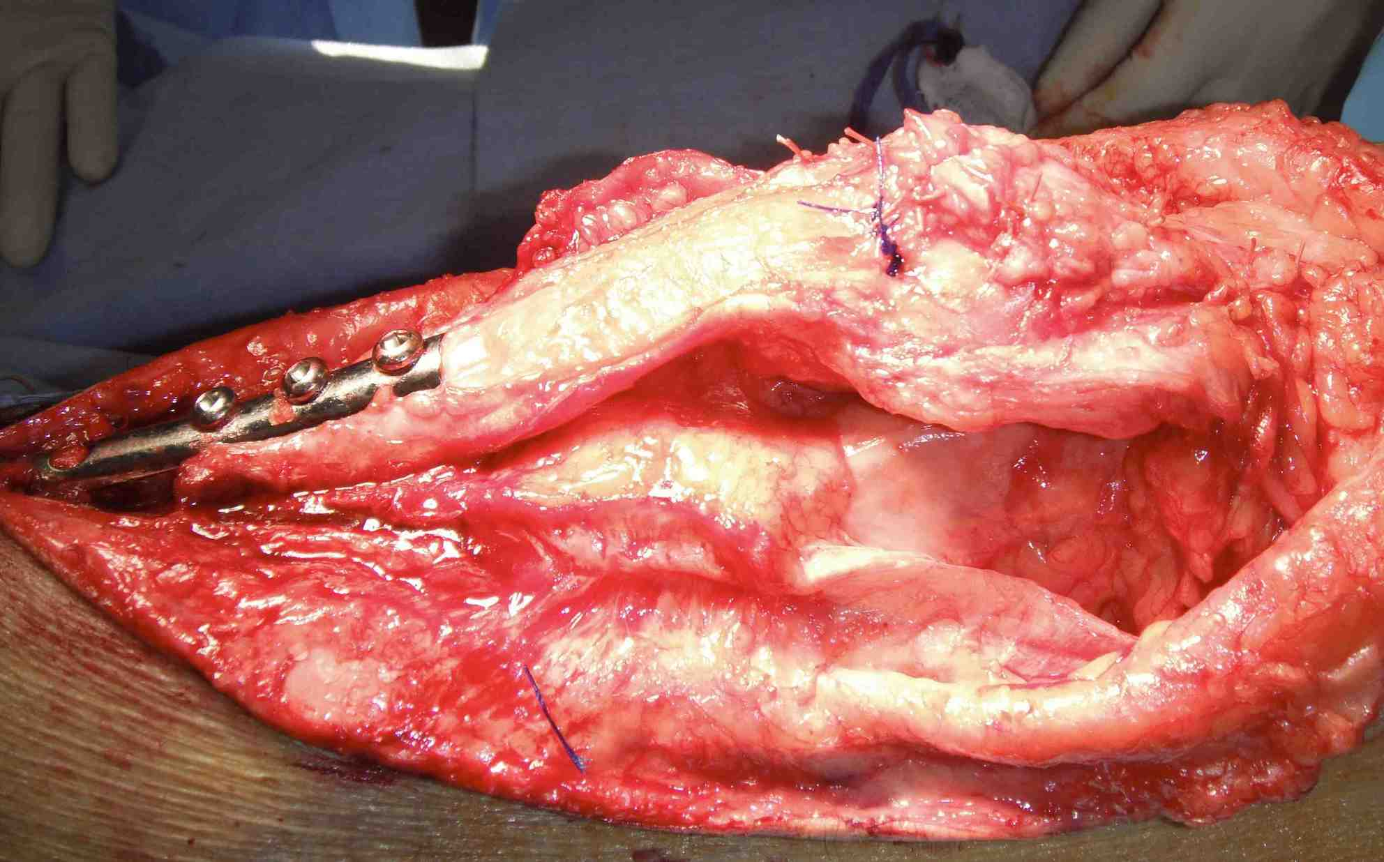 Quads Repair Tibial Osteotomy 2